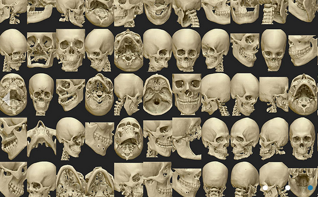 Osteo3D repository 3D printed medical models
