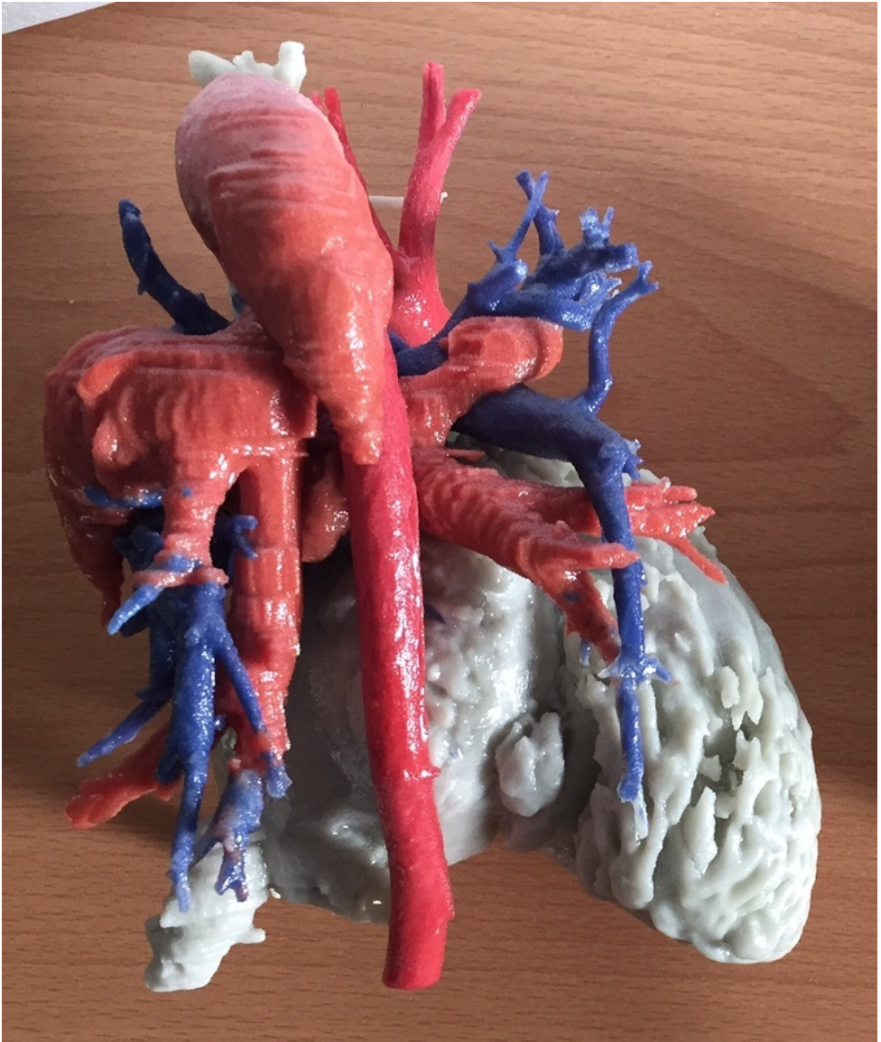 3D printing heart transplant surgery