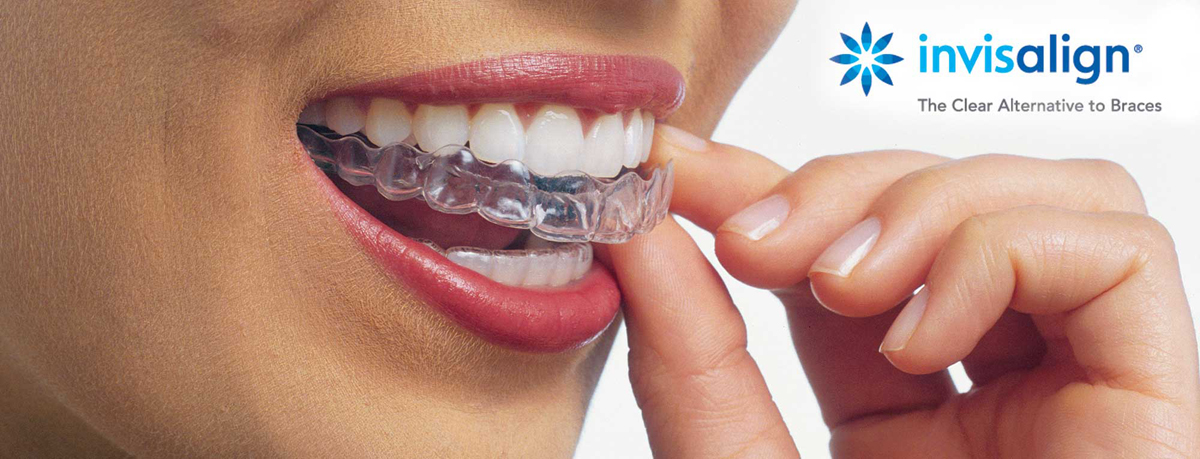 Invisalign 3D files printing legal biomedical