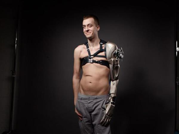 3D printed prosthetic medical