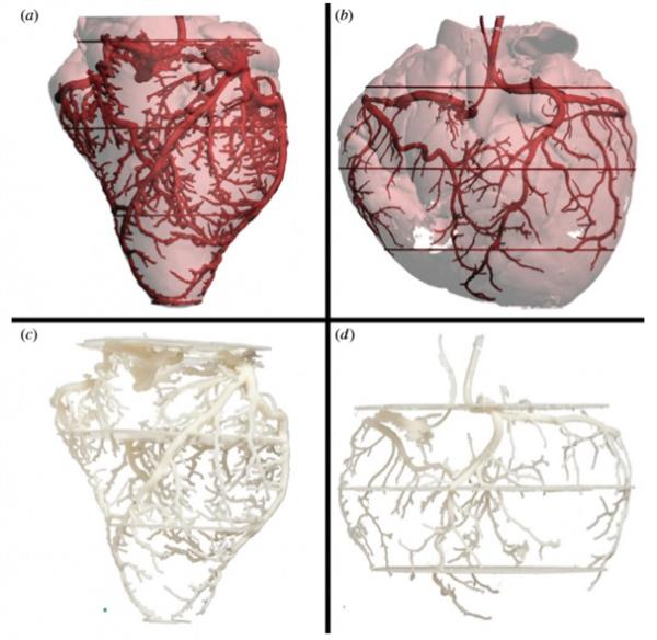 3D printing medical models anatomy