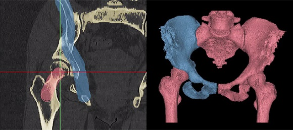 3D printing Materialise software medical imaging