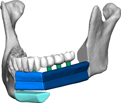 surgical planning 3D Systems medical dental