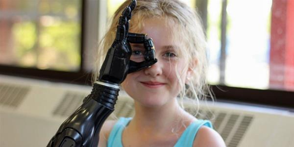 11 year old tilly receives 3d printed prosthetic arm after losing