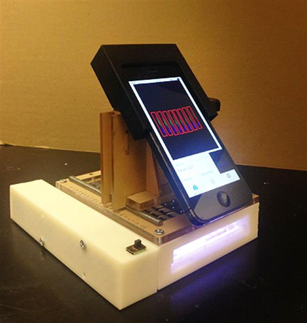 3D printed microscope smartphone cancer