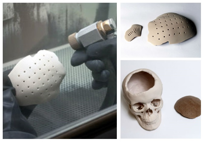 3D printing implants medical