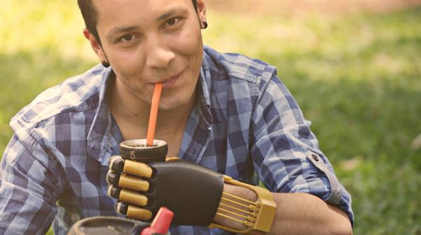 prosthetic 3D printing Paraguay