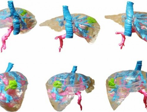 Polish researchers 3D print affordable preoperative liver model using FDM technology